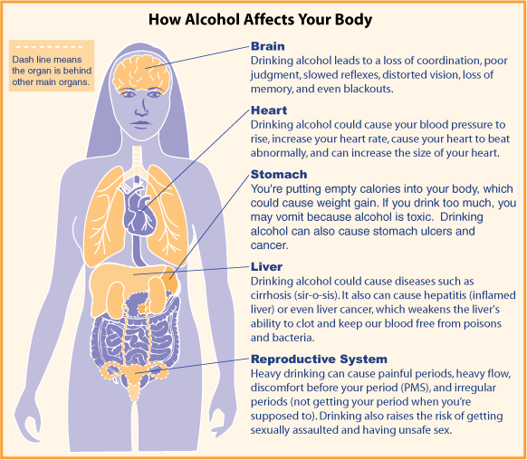 Naltrexone implant for alcohol addiction orange county
